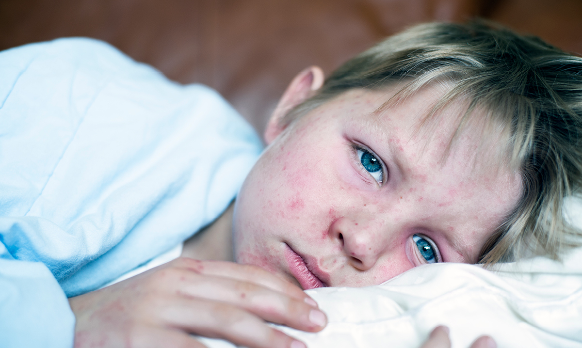 Michigan measles outbreak
